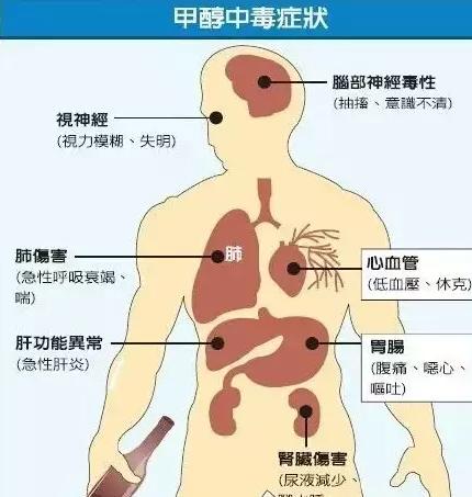 甲醇后期中毒症状